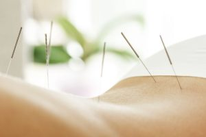 individual experiencing the acupuncture treatment program San Diego provides